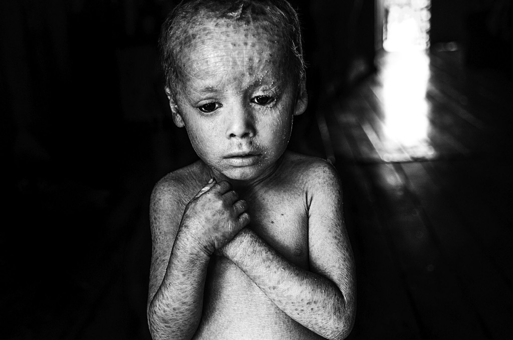 12-07-2014, Alicia Baja- Colonia Aurora, Province of Misiones Lucas Techeira is four years old and he was born with ichthyosis, a skin disorder that causes the skin to be dry and cracked. He is locally known as the crystal boy. His father Arnoldo left his job at the tobacco fields when his son was born. 32-year-old Rosana Gaspar, Lucas's mother, says that she always manipulated glyphosate at home to use in her vegetable garden.